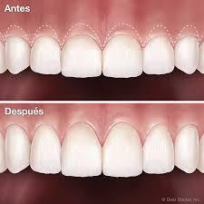 Alargamiento coronario clínica dental Jaraíz de la Vera