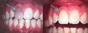Clínica dental Jaraíz de la Vera